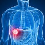 Aumentano le morti per cancro del fegato a causa dei cibi tossici: lo studio dell'American Cancer Society